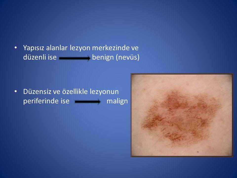 Yapısız alanlar lezyon merkezinde ve düzenli ise benign (nevüs) Düzensiz ve özellikle lezyonun periferinde ise malign