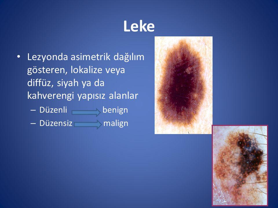 Leke Lezyonda asimetrik dağılım gösteren, lokalize veya diffüz, siyah ya da kahverengi yapısız alanlar – Düzenli benign – Düzensiz malign