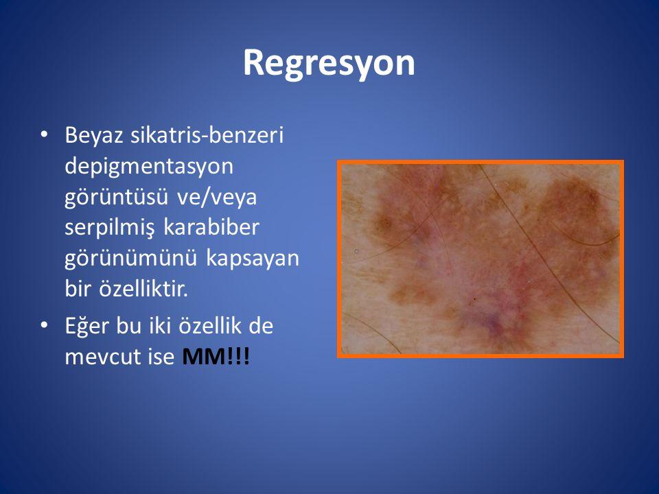 Regresyon Beyaz sikatris-benzeri depigmentasyon görüntüsü ve/veya serpilmiş karabiber görünümünü kapsayan bir özelliktir. Eğer bu iki özellik de mevcu