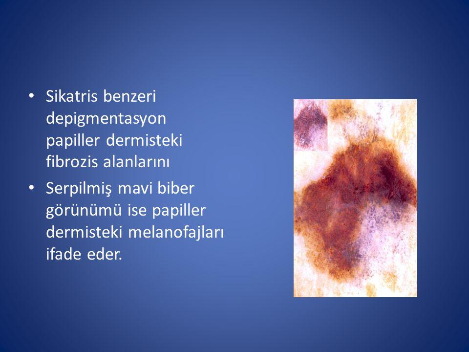 Sikatris benzeri depigmentasyon papiller dermisteki fibrozis alanlarını Serpilmiş mavi biber görünümü ise papiller dermisteki melanofajları ifade eder