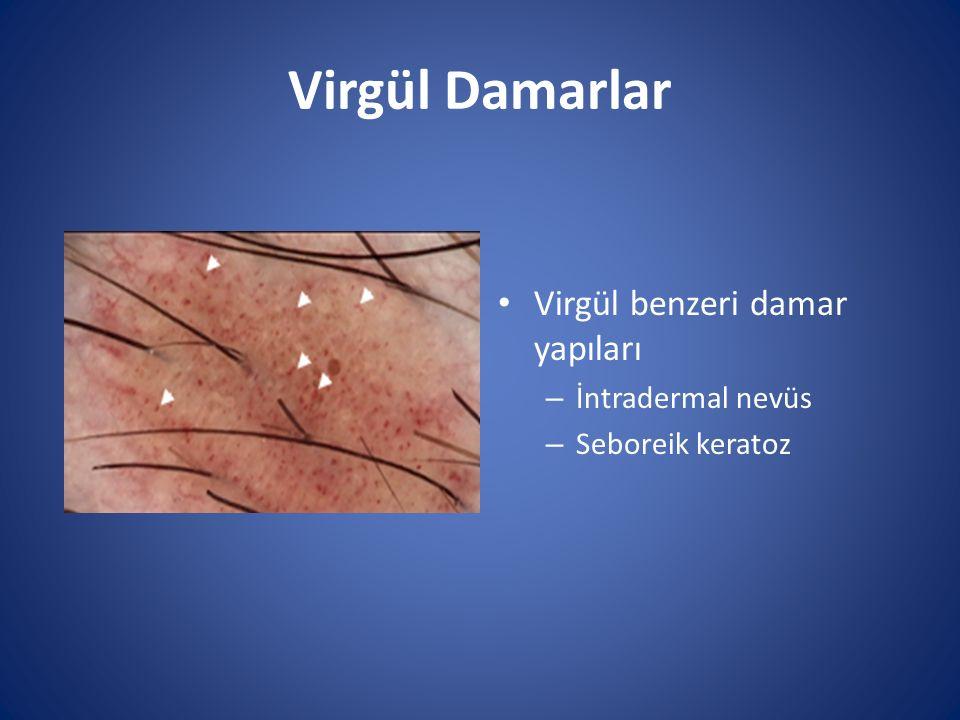 Virgül Damarlar Virgül benzeri damar yapıları – İntradermal nevüs – Seboreik keratoz