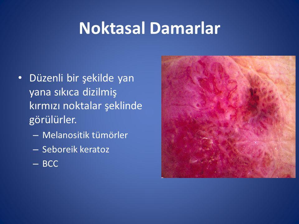 Noktasal Damarlar Düzenli bir şekilde yan yana sıkıca dizilmiş kırmızı noktalar şeklinde görülürler. – Melanositik tümörler – Seboreik keratoz – BCC