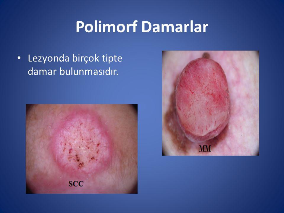 Polimorf Damarlar Lezyonda birçok tipte damar bulunmasıdır.