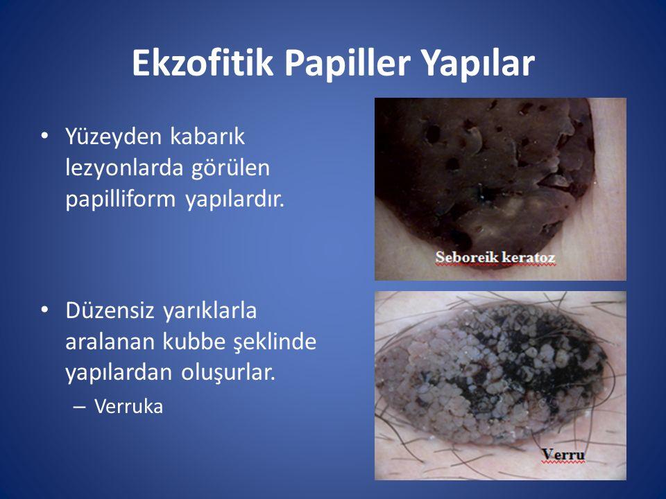 Ekzofitik Papiller Yapılar Yüzeyden kabarık lezyonlarda görülen papilliform yapılardır. Düzensiz yarıklarla aralanan kubbe şeklinde yapılardan oluşurl
