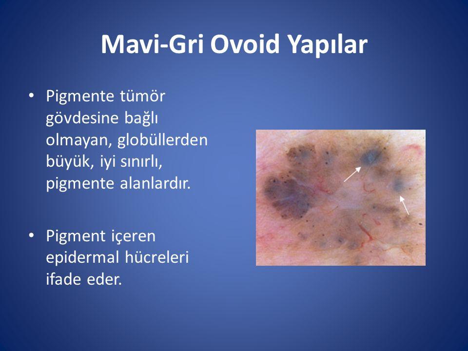 Mavi-Gri Ovoid Yapılar Pigmente tümör gövdesine bağlı olmayan, globüllerden büyük, iyi sınırlı, pigmente alanlardır. Pigment içeren epidermal hücreler