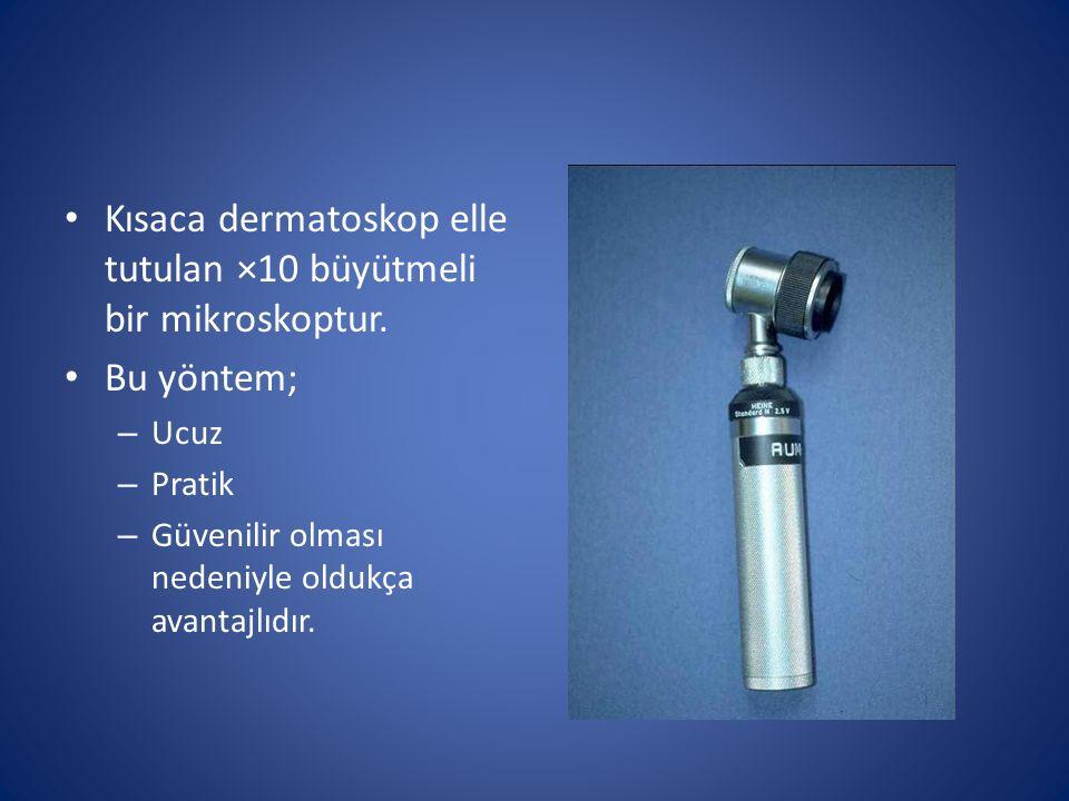 Kısaca dermatoskop elle tutulan ×10 büyütmeli bir mikroskoptur. Bu yöntem; – Ucuz – Pratik – Güvenilir olması nedeniyle oldukça avantajlıdır.