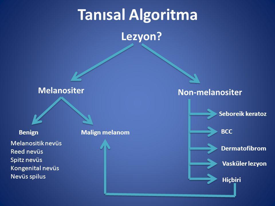 Tanısal Algoritma Lezyon? Melanositer Non-melanositer Benign Malign melanom Seboreik keratoz BCC Dermatofibrom Vasküler lezyon Hiçbiri Melanositik nev