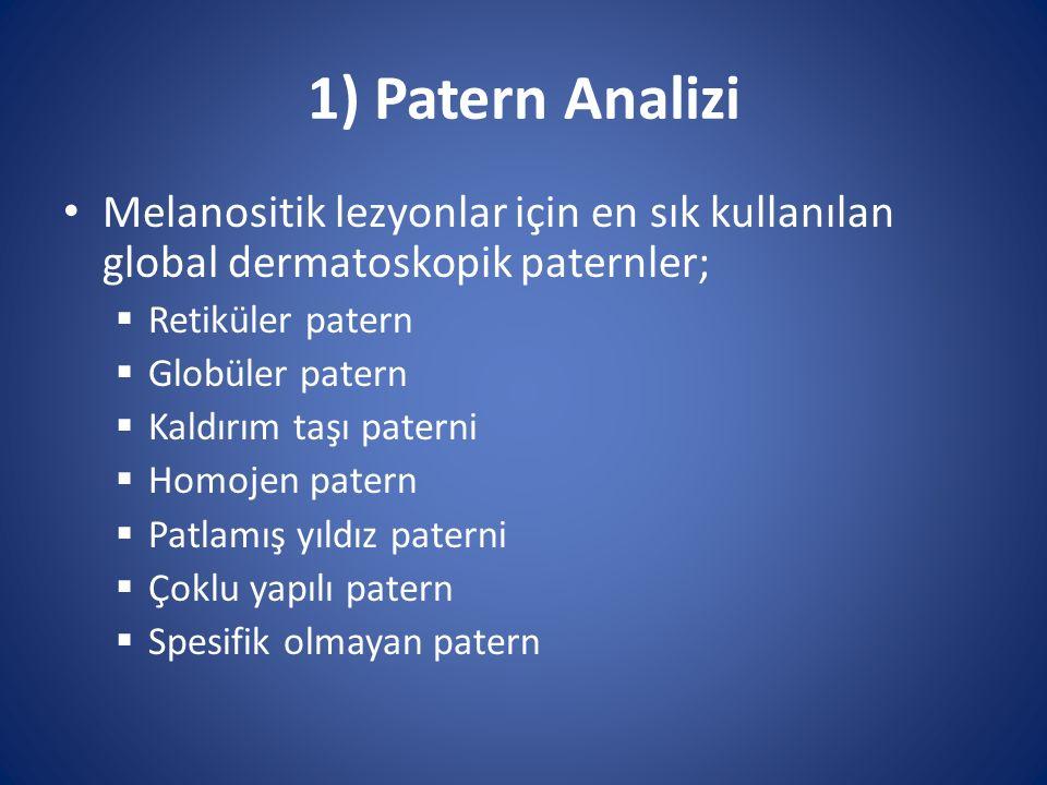 1) Patern Analizi Melanositik lezyonlar için en sık kullanılan global dermatoskopik paternler;  Retiküler patern  Globüler patern  Kaldırım taşı pa