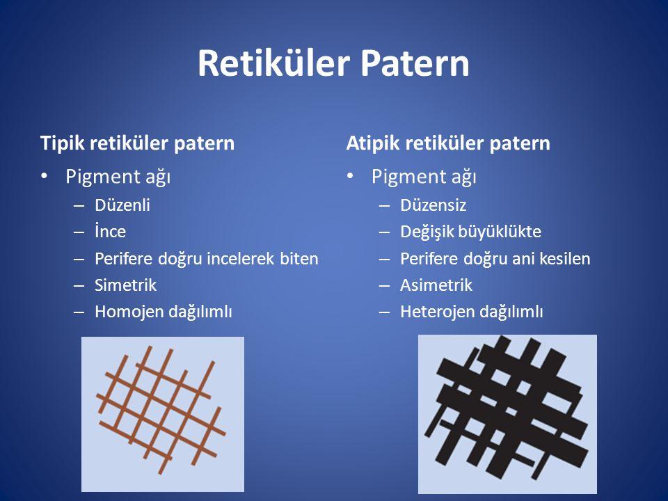 Retiküler Patern Tipik retiküler patern Pigment ağı – Düzenli – İnce – Perifere doğru incelerek biten – Simetrik – Homojen dağılımlı Atipik retiküler