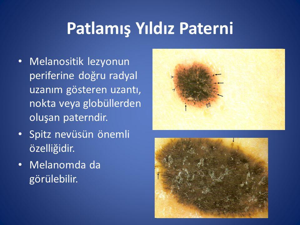Patlamış Yıldız Paterni Melanositik lezyonun periferine doğru radyal uzanım gösteren uzantı, nokta veya globüllerden oluşan paterndir. Spitz nevüsün ö