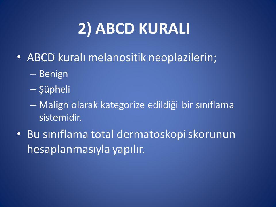 2) ABCD KURALI ABCD kuralı melanositik neoplazilerin; – Benign – Şüpheli – Malign olarak kategorize edildiği bir sınıflama sistemidir. Bu sınıflama to
