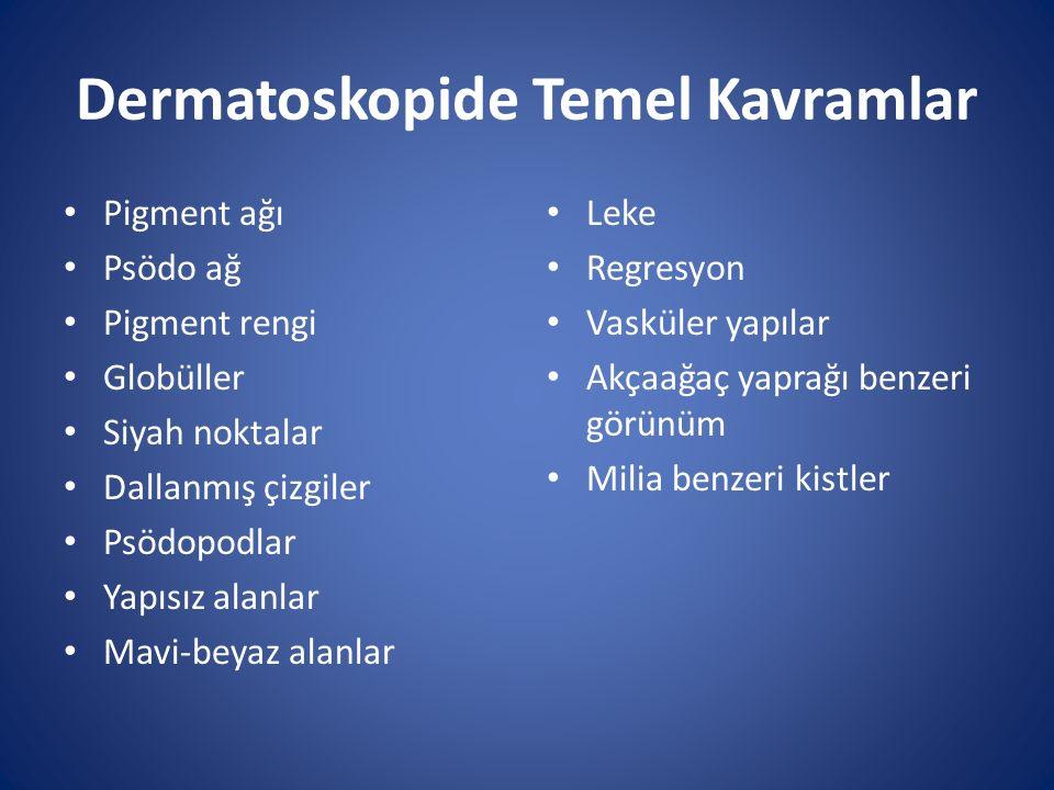 Seboreik Keratoza Ait Yapısal Özellikler Milia benzeri kistler (Psödokist) Komedon benzeri açıklık Serebriform veya fissüre alanlar Ekzofitik papiller yapılar Güve yeniği benzeri yapı Jöle benzeri yapı