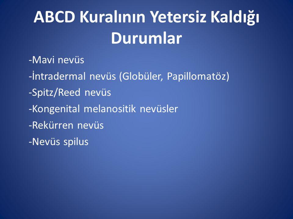 ABCD Kuralının Yetersiz Kaldığı Durumlar -Mavi nevüs -İntradermal nevüs (Globüler, Papillomatöz) -Spitz/Reed nevüs -Kongenital melanositik nevüsler -R