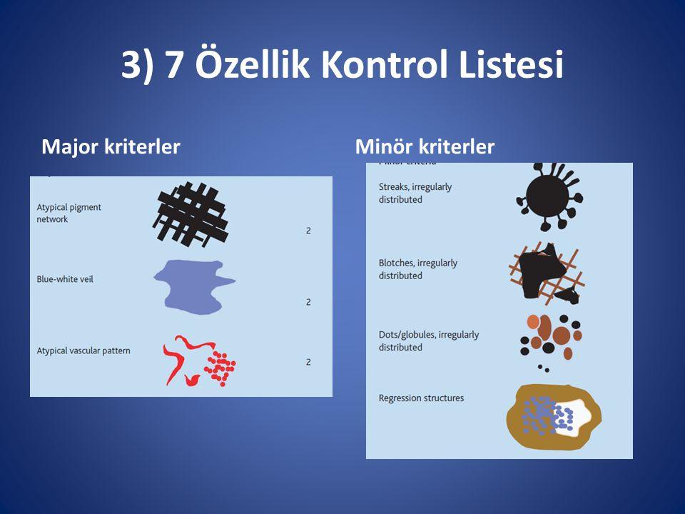 3) 7 Özellik Kontrol Listesi Major kriterlerMinör kriterler