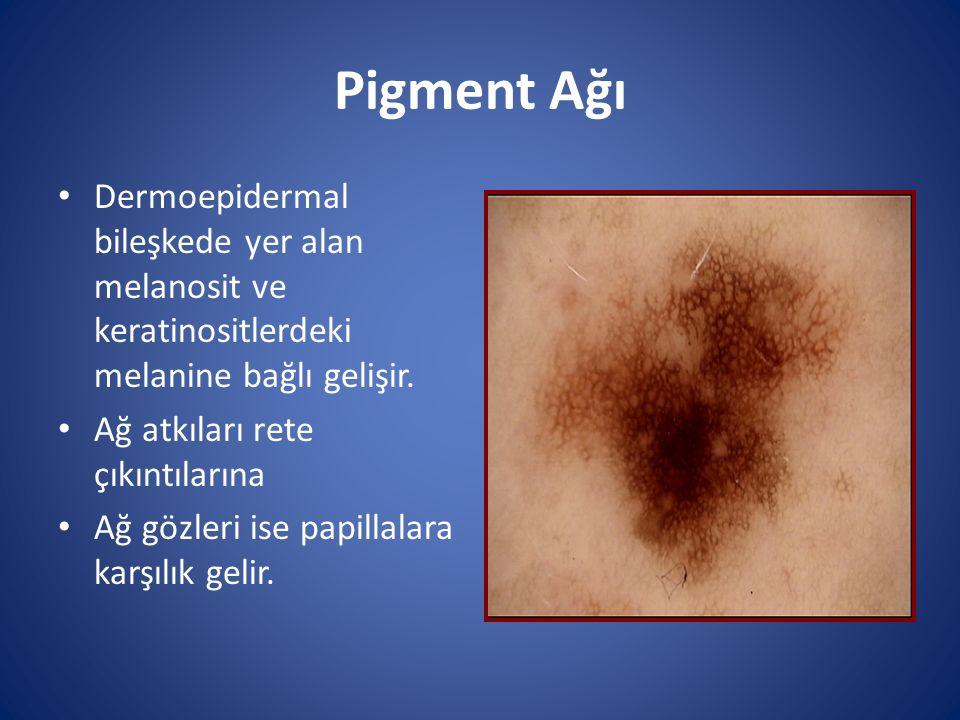 Pigment Ağı Dermoepidermal bileşkede yer alan melanosit ve keratinositlerdeki melanine bağlı gelişir. Ağ atkıları rete çıkıntılarına Ağ gözleri ise pa