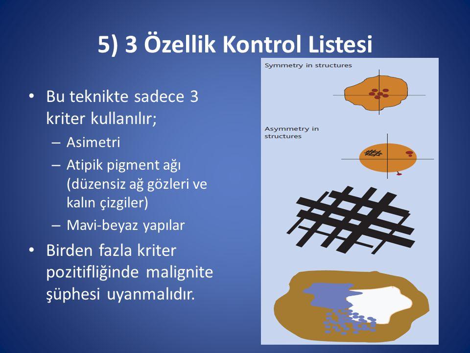 5) 3 Özellik Kontrol Listesi Bu teknikte sadece 3 kriter kullanılır; – Asimetri – Atipik pigment ağı (düzensiz ağ gözleri ve kalın çizgiler) – Mavi-be