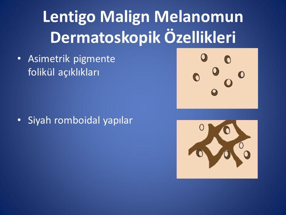 Lentigo Malign Melanomun Dermatoskopik Özellikleri Asimetrik pigmente folikül açıklıkları Siyah romboidal yapılar