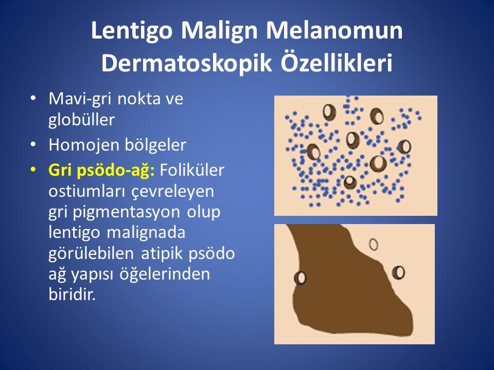 Lentigo Malign Melanomun Dermatoskopik Özellikleri Mavi-gri nokta ve globüller Homojen bölgeler Gri psödo-ağ: Foliküler ostiumları çevreleyen gri pigm