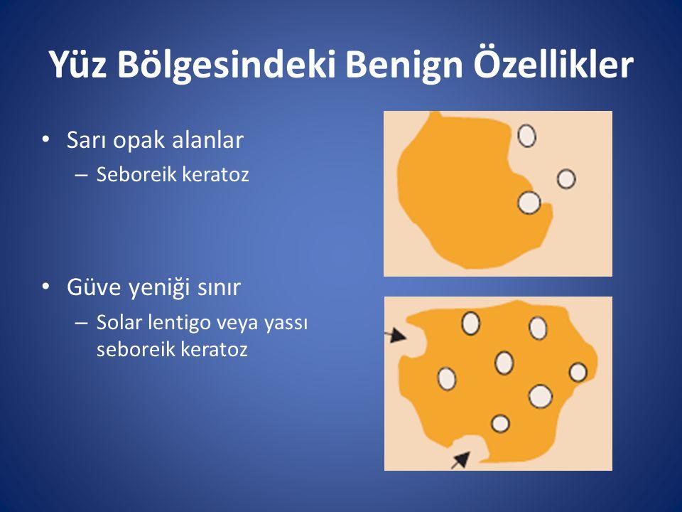 Yüz Bölgesindeki Benign Özellikler Sarı opak alanlar – Seboreik keratoz Güve yeniği sınır – Solar lentigo veya yassı seboreik keratoz