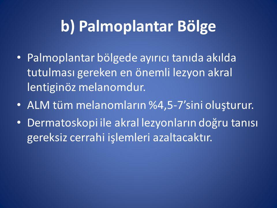 b) Palmoplantar Bölge Palmoplantar bölgede ayırıcı tanıda akılda tutulması gereken en önemli lezyon akral lentiginöz melanomdur. ALM tüm melanomların