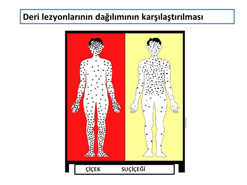 ÇİÇEK SUÇİÇEĞİ Deri lezyonlarının dağılımının karşılaştırılması