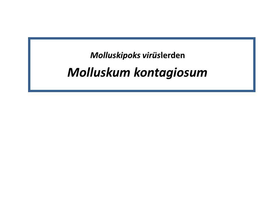 Molluskipoks virüslerden Molluskum kontagiosum