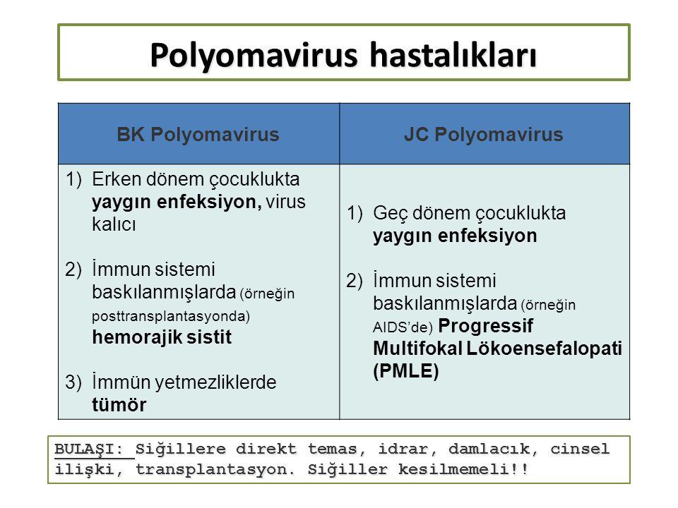 Polyomavirus hastalıkları BK PolyomavirusJC Polyomavirus 1)Erken dönem çocuklukta yaygın enfeksiyon, virus kalıcı 2)İmmun sistemi baskılanmışlarda (örneğin posttransplantasyonda) hemorajik sistit 3)İmmün yetmezliklerde tümör 1)Geç dönem çocuklukta yaygın enfeksiyon 2)İmmun sistemi baskılanmışlarda (örneğin AIDS'de) Progressif Multifokal Lökoensefalopati (PMLE) BULAŞI: Siğillere direkt temas, idrar, damlacık, cinsel ilişki, transplantasyon.