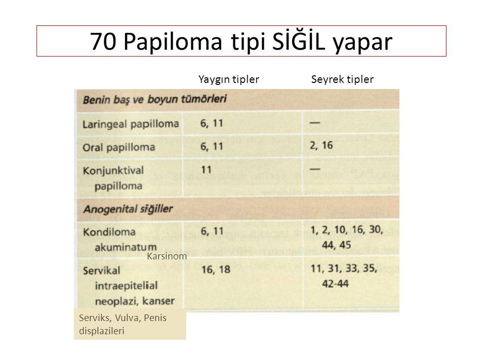 70 Papiloma tipi SİĞİL yapar Karsinom Serviks, Vulva, Penis displazileri Yaygın tipler Seyrek tipler