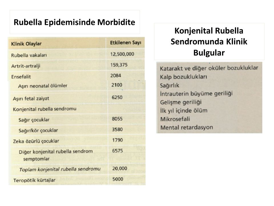 Rubella Epidemisinde Morbidite Konjenital Rubella Sendromunda Klinik Bulgular