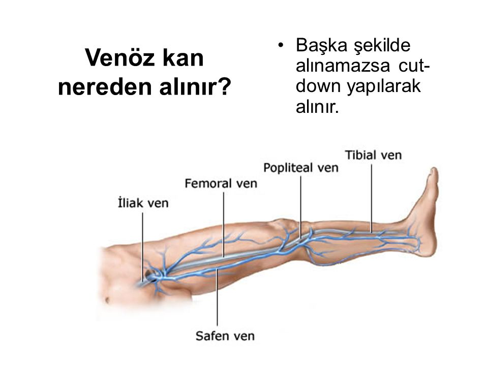 Arteria radialisten kan almak Damara 45 derecelik açıyla girilir.