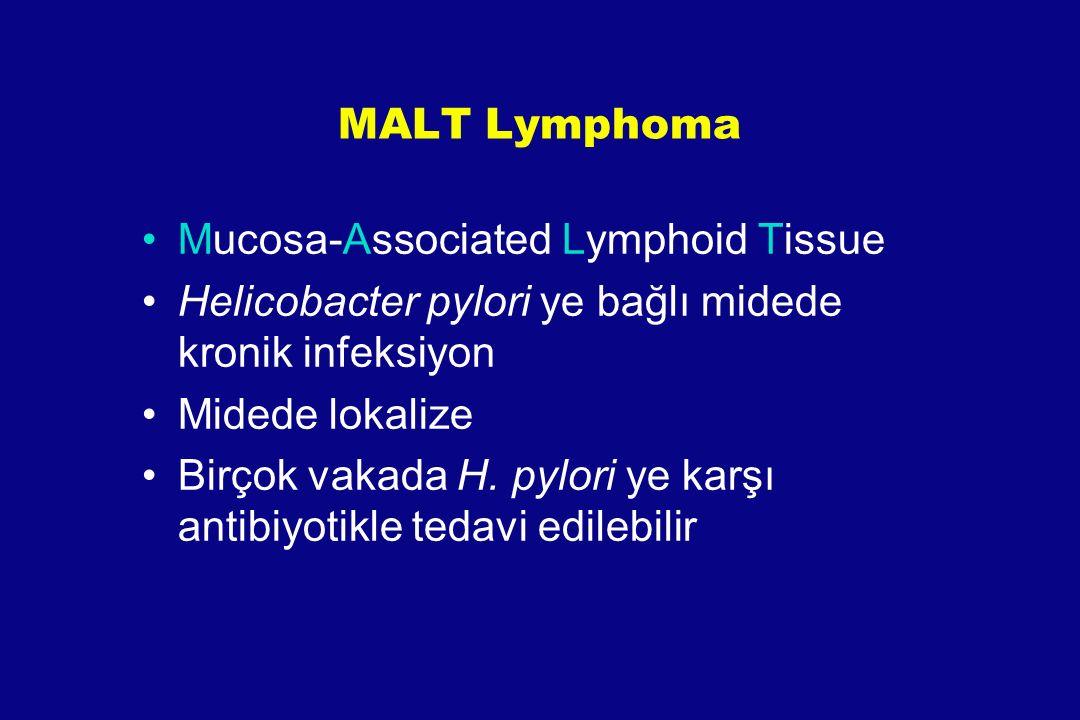 MALT Lymphoma Mucosa-Associated Lymphoid Tissue Helicobacter pylori ye bağlı midede kronik infeksiyon Midede lokalize Birçok vakada H. pylori ye karşı