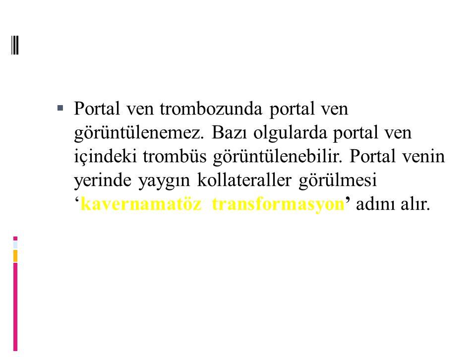 kavernamatöz transformasyon  Portal ven trombozunda portal ven görüntülenemez.