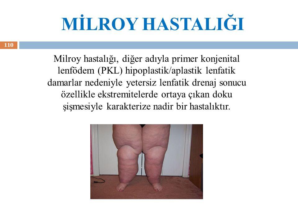 MİLROY HASTALIĞI 110 Milroy hastalığı, diğer adıyla primer konjenital lenfödem (PKL) hipoplastik/aplastik lenfatik damarlar nedeniyle yetersiz lenfati