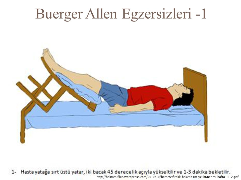 Buerger Allen Egzersizleri -1 128 http://helitam.files.wordpress.com/2010/10/hemc59firelik-bakc4b1m-yc3b6netimi-hafta-11-2.pdf
