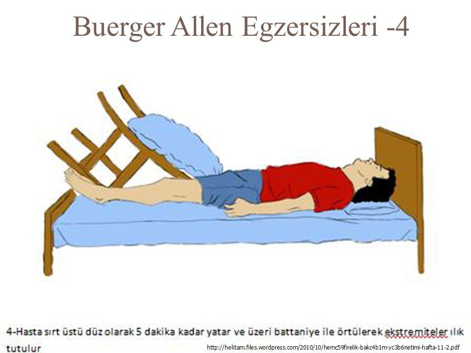Buerger Allen Egzersizleri -4 131 http://helitam.files.wordpress.com/2010/10/hemc59firelik-bakc4b1m-yc3b6netimi-hafta-11-2.pdf
