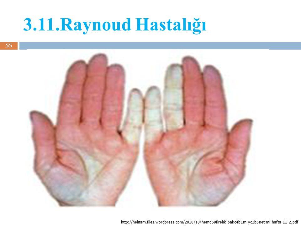 3.11.Raynoud Hastalığı 55 http://helitam.files.wordpress.com/2010/10/hemc59firelik-bakc4b1m-yc3b6netimi-hafta-11-2.pdf