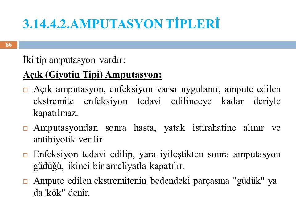 3.14.4.2.AMPUTASYON TİPLERİ İki tip amputasyon vardır: Açık (Giyotin Tipi) Amputasyon:  Açık amputasyon, enfeksiyon varsa uygulanır, ampute edilen ek