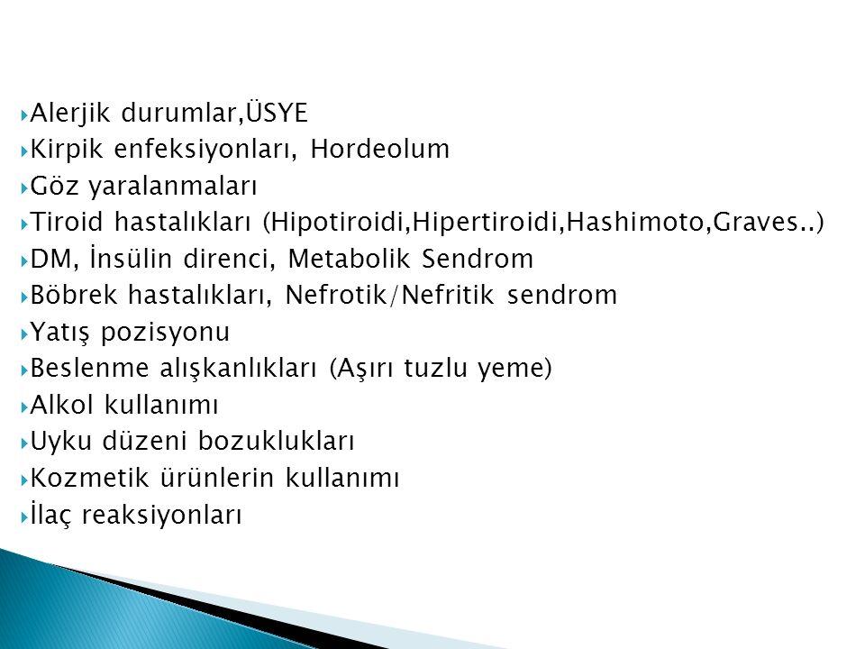  Alerjik durumlar,ÜSYE  Kirpik enfeksiyonları, Hordeolum  Göz yaralanmaları  Tiroid hastalıkları (Hipotiroidi,Hipertiroidi,Hashimoto,Graves..)  DM, İnsülin direnci, Metabolik Sendrom  Böbrek hastalıkları, Nefrotik/Nefritik sendrom  Yatış pozisyonu  Beslenme alışkanlıkları (Aşırı tuzlu yeme)  Alkol kullanımı  Uyku düzeni bozuklukları  Kozmetik ürünlerin kullanımı  İlaç reaksiyonları