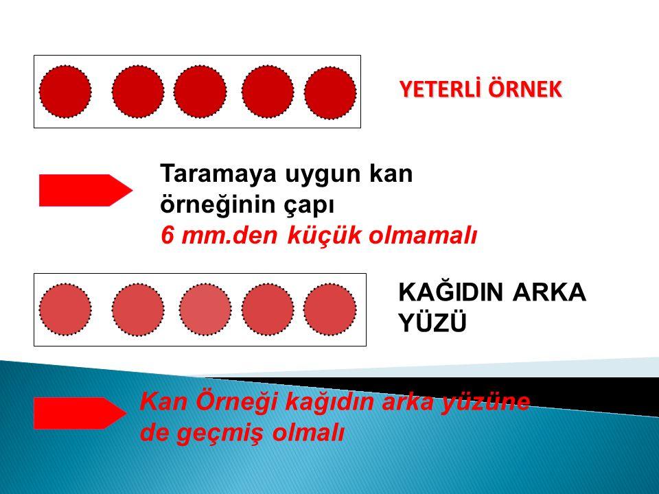 YETERLİ ÖRNEK KAĞIDIN ARKA YÜZÜ Taramaya uygun kan örneğinin çapı 6 mm.den küçük olmamalı Kan Örneği kağıdın arka yüzüne de geçmiş olmalı