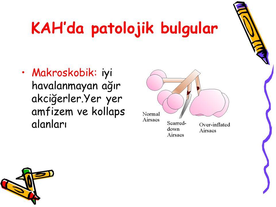 KAH'da patolojik bulgular Makroskobik: iyi havalanmayan ağır akciğerler.Yer yer amfizem ve kollaps alanları