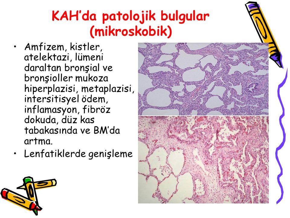 KAH'da patolojik bulgular (mikroskobik) Amfizem, kistler, atelektazi, lümeni daraltan bronşial ve bronşioller mukoza hiperplazisi, metaplazisi, intersitisyel ödem, inflamasyon, fibröz dokuda, düz kas tabakasında ve BM'da artma.