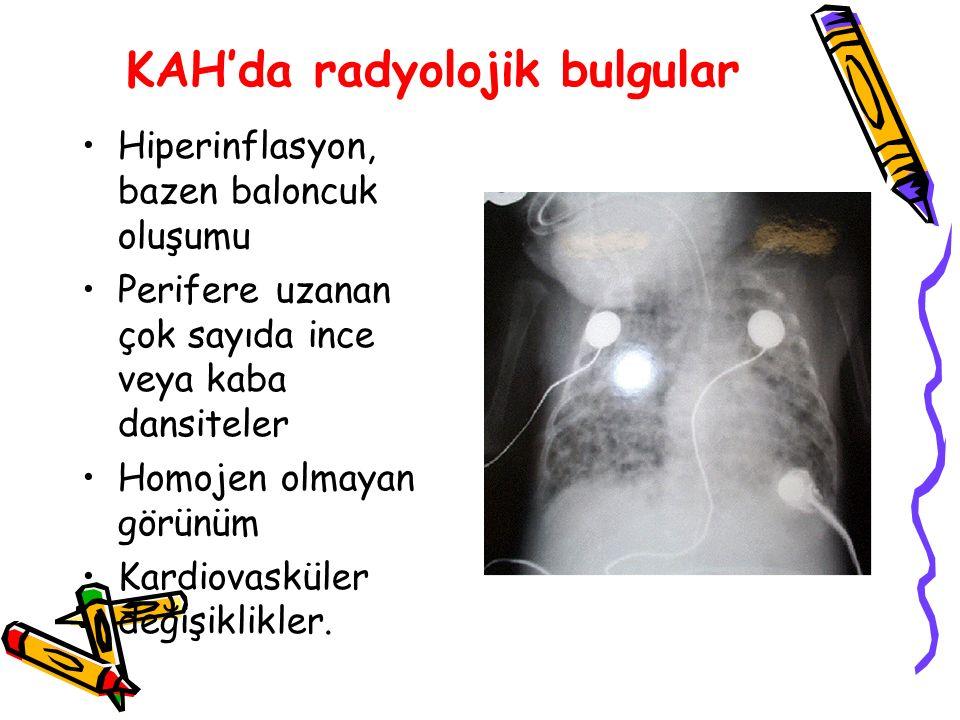 KAH'da radyolojik bulgular Hiperinflasyon, bazen baloncuk oluşumu Perifere uzanan çok sayıda ince veya kaba dansiteler Homojen olmayan görünüm Kardiovasküler değişiklikler.