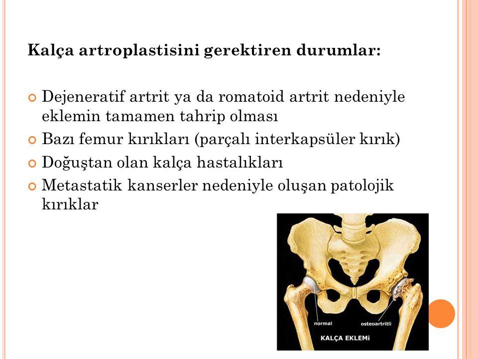 Kalça artroplastisini gerektiren durumlar: Dejeneratif artrit ya da romatoid artrit nedeniyle eklemin tamamen tahrip olması Bazı femur kırıkları (parçalı interkapsüler kırık) Doğuştan olan kalça hastalıkları Metastatik kanserler nedeniyle oluşan patolojik kırıklar