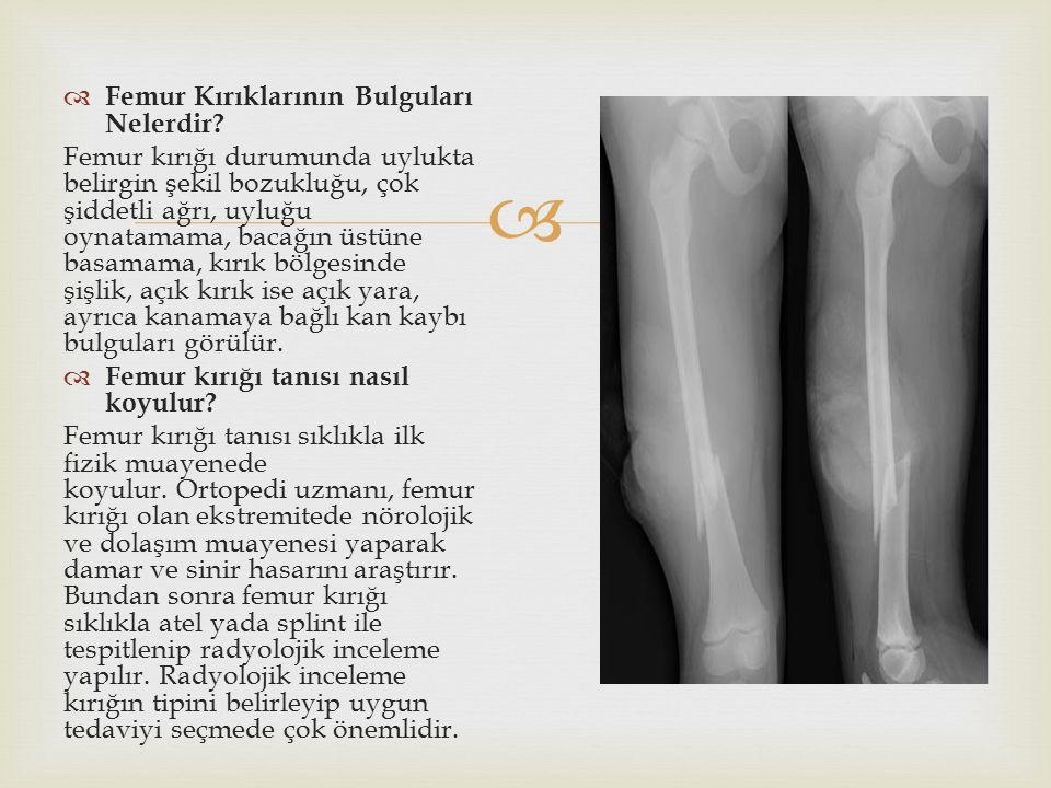   Femur Kırıklarının Bulguları Nelerdir? Femur kırığı durumunda uylukta belirgin şekil bozukluğu, çok şiddetli ağrı, uyluğu oynatamama, bacağın üstü