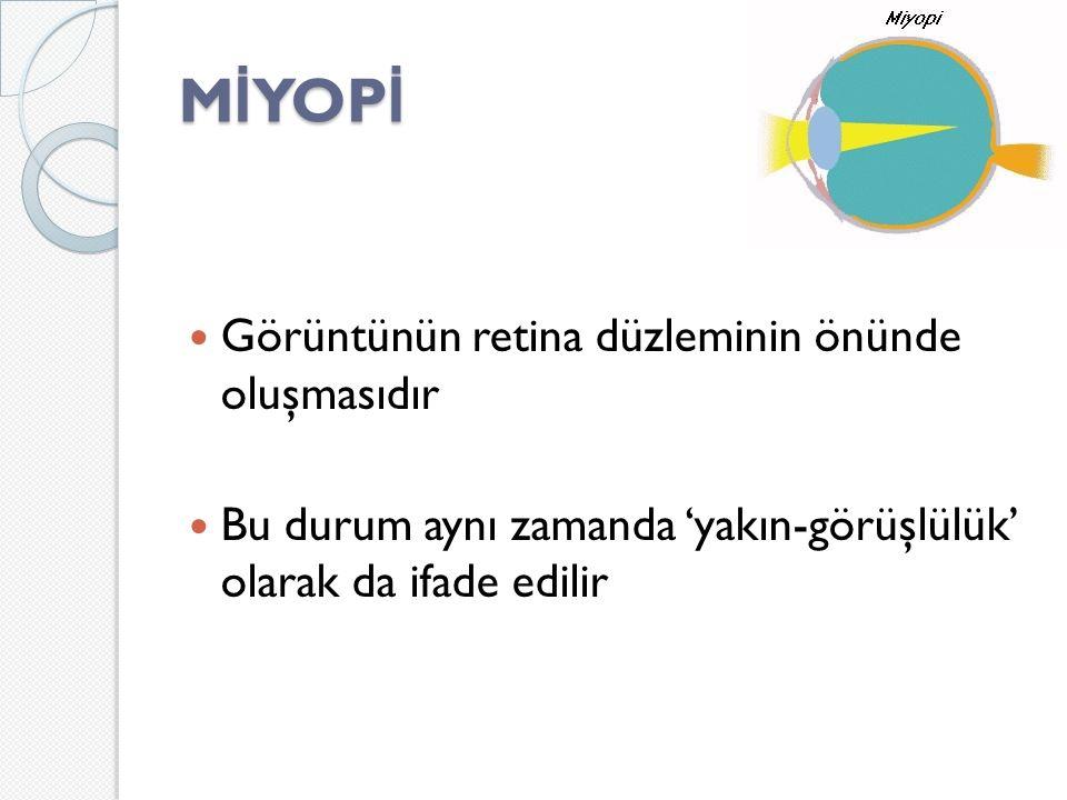 M İ YOP İ Görüntünün retina düzleminin önünde oluşmasıdır Bu durum aynı zamanda 'yakın-görüşlülük' olarak da ifade edilir