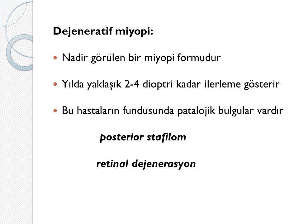Dejeneratif miyopi: Nadir görülen bir miyopi formudur Yılda yaklaşık 2-4 dioptri kadar ilerleme gösterir Bu hastaların fundusunda patalojik bulgular vardır posterior stafilom retinal dejenerasyon