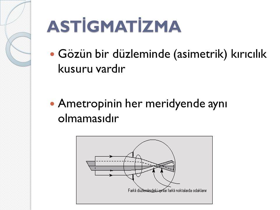 AST İ GMAT İ ZMA Gözün bir düzleminde (asimetrik) kırıcılık kusuru vardır Ametropinin her meridyende aynı olmamasıdır