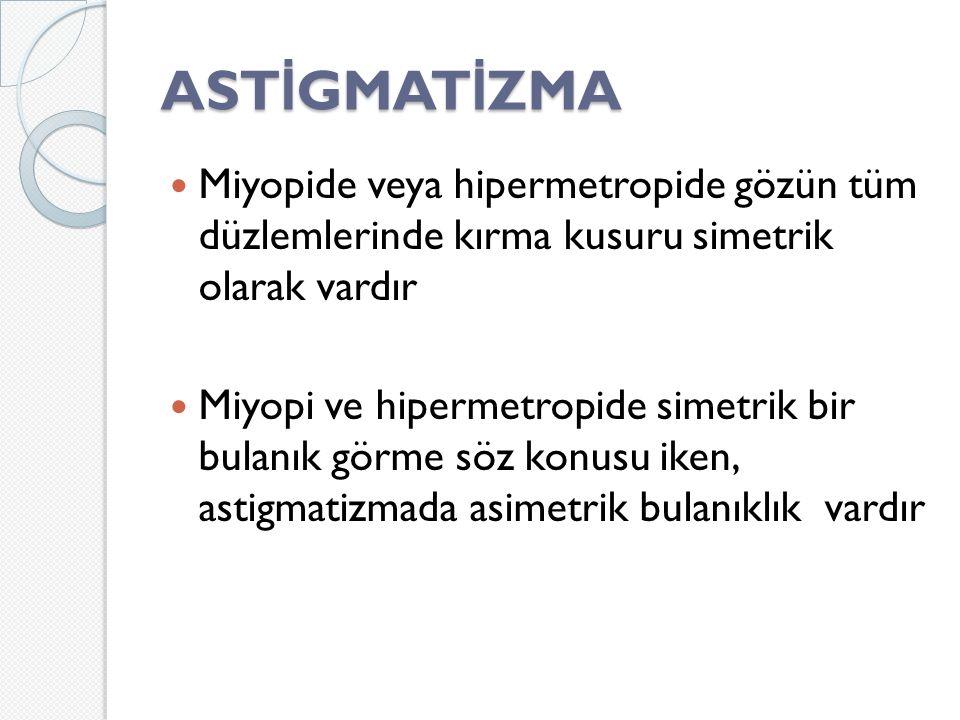 AST İ GMAT İ ZMA Miyopide veya hipermetropide gözün tüm düzlemlerinde kırma kusuru simetrik olarak vardır Miyopi ve hipermetropide simetrik bir bulanık görme söz konusu iken, astigmatizmada asimetrik bulanıklık vardır