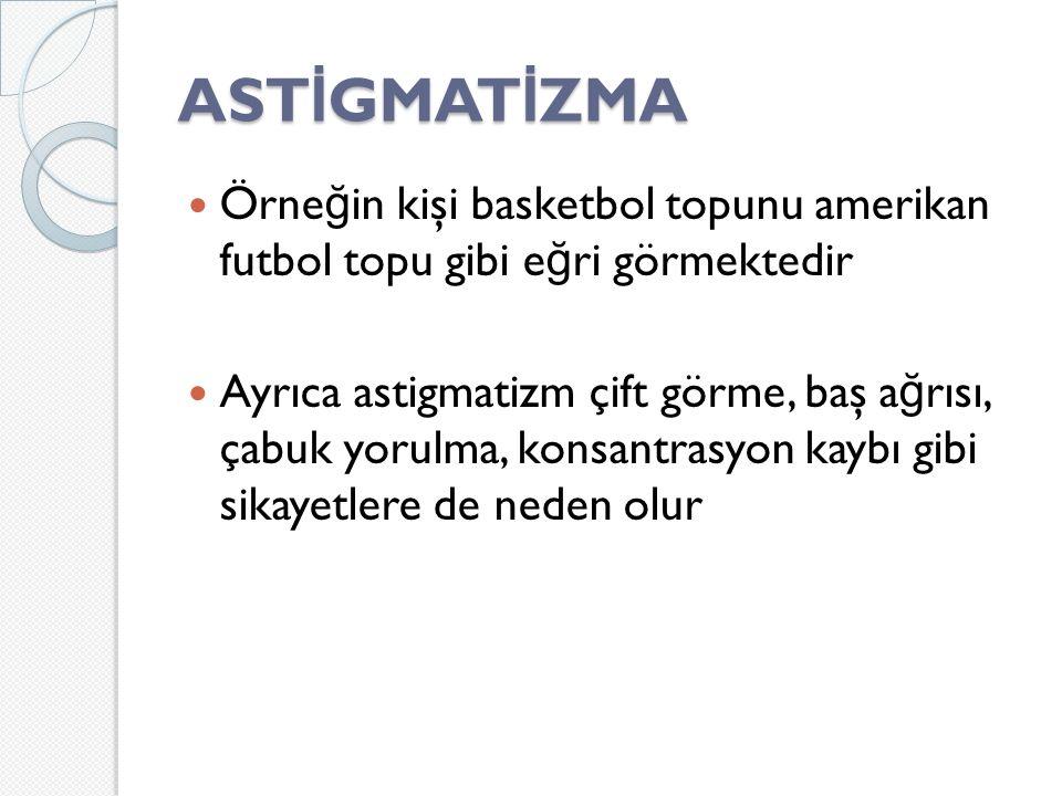 AST İ GMAT İ ZMA Örne ğ in kişi basketbol topunu amerikan futbol topu gibi e ğ ri görmektedir Ayrıca astigmatizm çift görme, baş a ğ rısı, çabuk yorulma, konsantrasyon kaybı gibi sikayetlere de neden olur