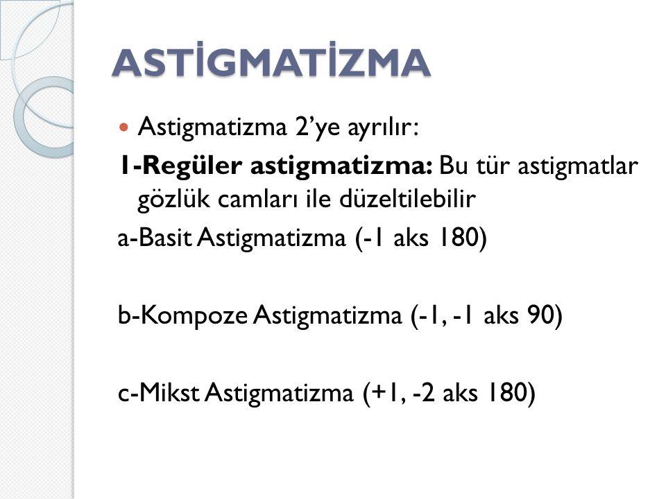 AST İ GMAT İ ZMA Astigmatizma 2'ye ayrılır: 1-Regüler astigmatizma: Bu tür astigmatlar gözlük camları ile düzeltilebilir a-Basit Astigmatizma (-1 aks 180) b-Kompoze Astigmatizma (-1, -1 aks 90) c-Mikst Astigmatizma (+1, -2 aks 180)
